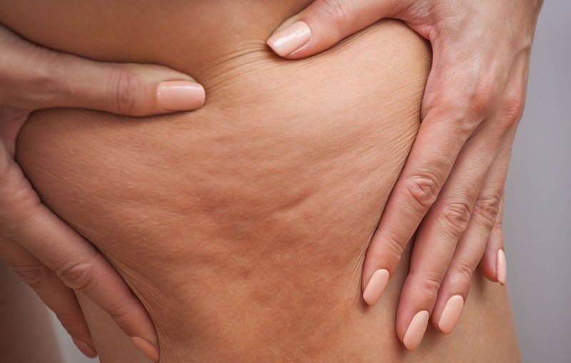 alimentazione-anti-cellulite